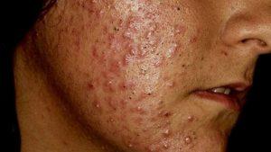 tratamento comedônico acne buenos aires