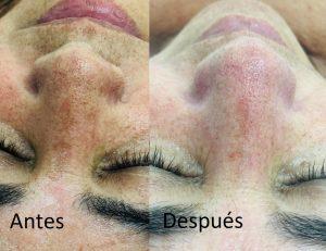 résultats de desquamation de la peau