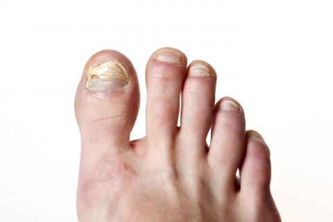 toenails with onychisis