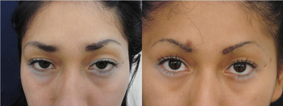 eliminar dermopigmentación