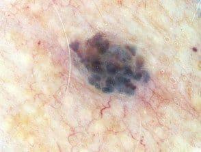 blue-cherry-angioma-dermoscopy__protectwyjqcm90zwn0il0_focusfillwzi5ncwymjisinkildzd-9244446-3998242