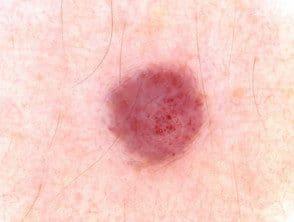 cherry-angioma-dermoscopy5__protectwyjqcm90zwn0il0_focusfillwzi5ncwymjisinkildzd-2500409-4438673