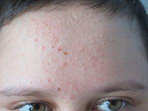 acne-steroids__protectwyjqcm90zwn0il0_focusfillwzi5ncwymjisingildfd-2785565-8247338