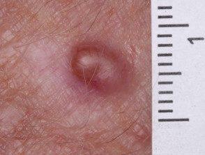 amelanotic-melanoma-034__protectwyjqcm90zwn0il0_focusfillwzi5ncwymjisingildfd-5320950-2480649
