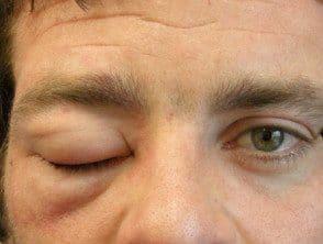 angioedema-001__protectwyjqcm90zwn0il0_focusfillwzi5ncwymjisingildfd-2936776-2499232