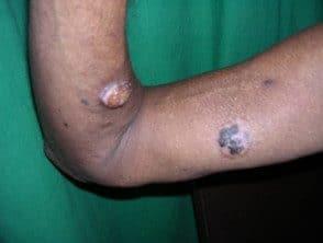 arsenic-cancer__protectwyjqcm90zwn0il0_focusfillwzi5ncwymjisingildfd-3763207-1779573