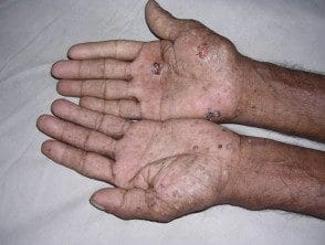 arsenic-keratoses__protectwyjqcm90zwn0il0_focusfillwzi5ncwymjisingildfd-4946465-4520117