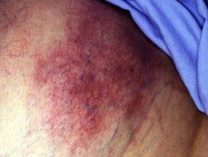 calciphylaxis1__protectwyjqcm90zwn0il0_focusfillwzi5ncwymjisingildfd-9461750-6494495