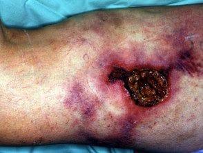 calciphylaxis4__protectwyjqcm90zwn0il0_focusfillwzi5ncwymjisingildfd-7775173-3225207
