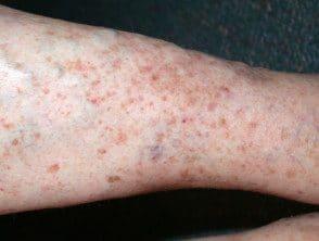 capillaritis-38__protectwyjqcm90zwn0il0_focusfillwzi5ncwymjisingildfd-4053567-9794457