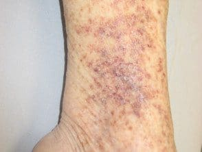 capillaritis-41__protectwyjqcm90zwn0il0_focusfillwzi5ncwymjisinkildg1xq-4024614-1179924