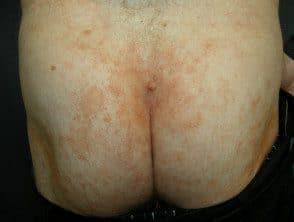capillaritis-45__protectwyjqcm90zwn0il0_focusfillwzi5ncwymjisingildfd-5669849-8996219