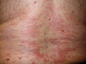 capillaritis-47__protectwyjqcm90zwn0il0_focusfillwzi5ncwymjisingildfd-8486438-2111481