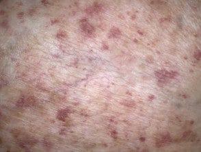 capillaritis-dermoscopy-28__protectwyjqcm90zwn0il0_focusfillwzi5ncwymjisingildfd-6843692-8645018