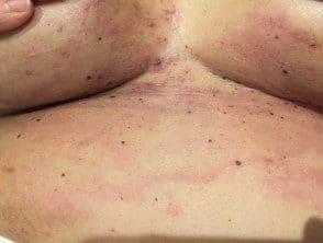 carcinoma-erysipeloides-02__protectwyjqcm90zwn0il0_focusfillwzi5ncwymjisingildfd-2695204-8107779