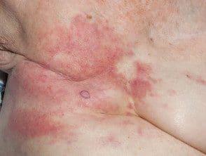 carcinoma-erysipeloides2__protectwyjqcm90zwn0il0_focusfillwzi5ncwymjisingildhd-1611365-8764295