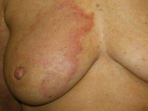carcinoma-erysipeloides5__protectwyjqcm90zwn0il0_focusfillwzi5ncwymjisingildfd-1631040-6641318