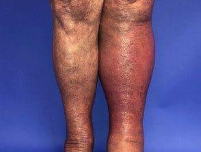 cellulitis-012__protectwyjqcm90zwn0il0_focusfillwzi5ncwymjisinkildg1xq-7126452-3744130
