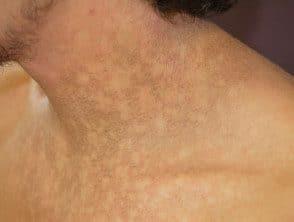 Tratamiento de papilomatosis reticulada y confluente, Picioarelor părul