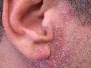 dermatite acneiforme vörös foltok az egyik lábán és forrók
