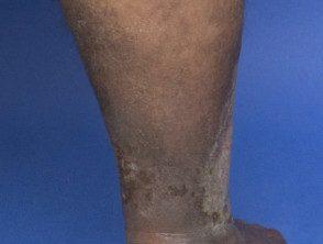 eczema-dark-skin__protectwyjqcm90zwn0il0_focusfillwzi5ncwymjisinkildewov0-4472595-1616651