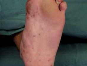 enteroviral-foot-075__protectwyjqcm90zwn0il0_focusfillwzi5ncwymjisinkildexmf0-1710489-8107598