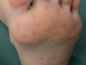 enteroviral-foot-076__protectwyjqcm90zwn0il0_focusfillwzi5ncwymjisinkildewov0-8304099-6979072