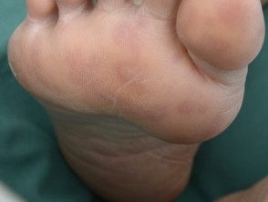 enteroviral-foot-077__protectwyjqcm90zwn0il0_focusfillwzi5ncwymjisinkildewov0-8078683-7135789