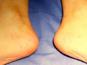 enteroviral-foot-080__protectwyjqcm90zwn0il0_focusfillwzi5ncwymjisingildfd-5918352-9547025