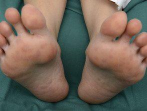 enteroviral-foot-082__protectwyjqcm90zwn0il0_focusfillwzi5ncwymjisingilde5xq-8498562-2433817
