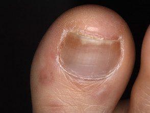enteroviral-foot-085__protectwyjqcm90zwn0il0_focusfillwzi5ncwymjisingilde5xq-2373846-9828401