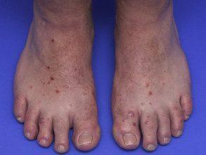 enteroviral-foot-086__protectwyjqcm90zwn0il0_focusfillwzi5ncwymjisingilde5xq-8702175-7402332