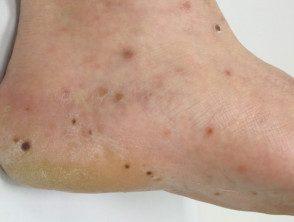 enteroviral-foot-089__protectwyjqcm90zwn0il0_focusfillwzi5ncwymjisingildfd-4008033-7253209