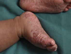 enteroviral-foot-blisters-007__protectwyjqcm90zwn0il0_focusfillwzi5ncwymjisingilde5xq-7792848-7649292
