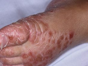 enteroviral-foot-blisters-008__protectwyjqcm90zwn0il0_focusfillwzi5ncwymjisingilde5xq-6186587-7476081