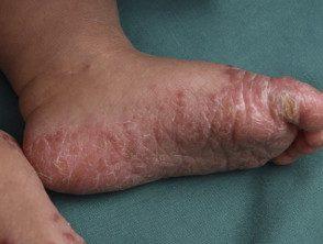 enteroviral-foot-blisters-010__protectwyjqcm90zwn0il0_focusfillwzi5ncwymjisingilde5xq-5030513-2659871