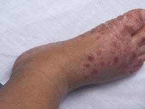 enteroviral-foot-blisters-011__protectwyjqcm90zwn0il0_focusfillwzi5ncwymjisingilde5xq-2916183-8580259