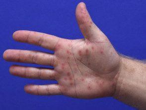 enteroviral-hand-blisters-014__protectwyjqcm90zwn0il0_focusfillwzi5ncwymjisingildfd-1579259-9672605