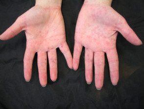 enteroviral-hand-blisters-015-v2__protectwyjqcm90zwn0il0_focusfillwzi5ncwymjisingildfd-2402124-3157838