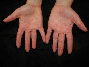 enteroviral-hand-blisters-016__protectwyjqcm90zwn0il0_focusfillwzi5ncwymjisingildfd-6025111-1328691