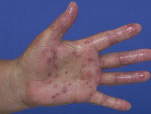 enteroviral-hand-blisters-017__protectwyjqcm90zwn0il0_focusfillwzi5ncwymjisingilde5xq-1028154-2182089