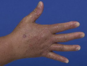 enteroviral-hand-blisters-018__protectwyjqcm90zwn0il0_focusfillwzi5ncwymjisingilde5xq-3259392-4637080
