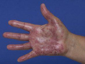 enteroviral-hand-blisters-019__protectwyjqcm90zwn0il0_focusfillwzi5ncwymjisingilde5xq-8129021-4226831