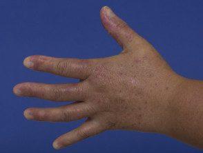 enteroviral-hand-blisters-020__protectwyjqcm90zwn0il0_focusfillwzi5ncwymjisingilde5xq-4356168-8770865
