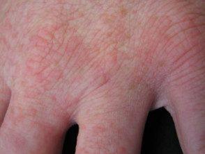 enteroviral-hand-blisters-021__protectwyjqcm90zwn0il0_focusfillwzi5ncwymjisinkildg1xq-5000738-8250929
