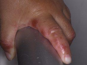 enteroviral-hand-blisters-022__protectwyjqcm90zwn0il0_focusfillwzi5ncwymjisingilde5xq-2665300-4220594