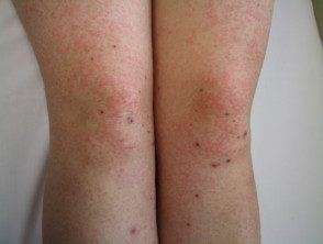 enteroviral-rash-027__protectwyjqcm90zwn0il0_focusfillwzi5ncwymjisingildfd-8916783-7229946