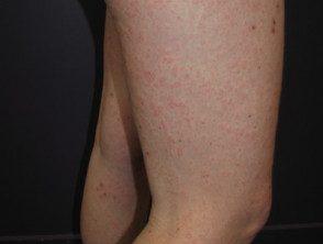 enteroviral-rash-038__protectwyjqcm90zwn0il0_focusfillwzi5ncwymjisinkildg1xq-9273192-4567168