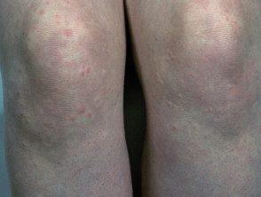 enteroviral-rash-090__protectwyjqcm90zwn0il0_focusfillwzi5ncwymjisingildvd-6775694-1614684