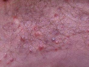 enteroviral-rash-095__protectwyjqcm90zwn0il0_focusfillwzi5ncwymjisingilde5xq-5464402-2612230